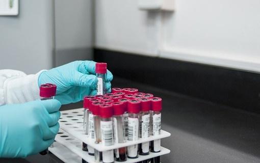 U Srbiji od koronavirusa umrla još jedna osoba, još 341 zaražena